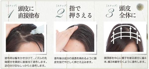 女性の育毛剤「CA101」の効果的な使い方