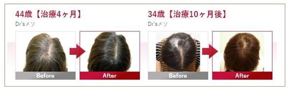 東京ビューティークリニック Dr'sメソ(FAGAメソセラピー)施術方法