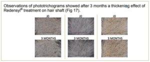リデンシルを3ヶ月間毎日塗布した結果の写真
