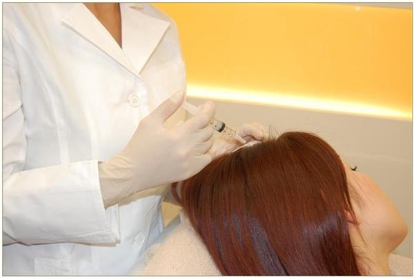 女性育毛メソセラピーが受けられるクリニックと病院その料金を紹介